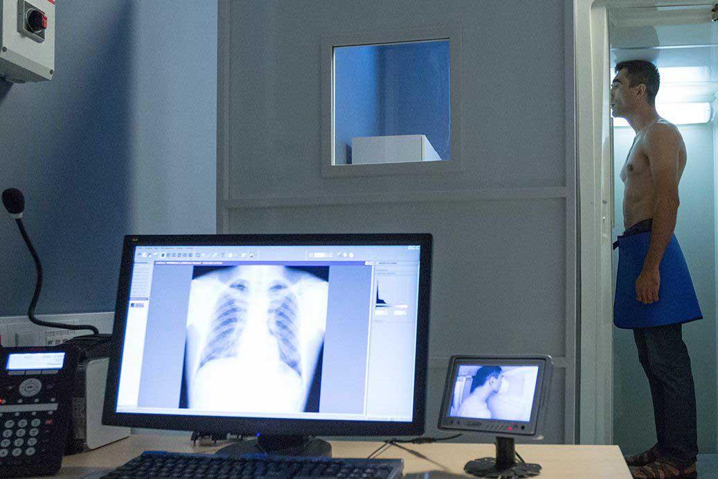 Мобильный флюорограф возобновил работу в ТиНАО